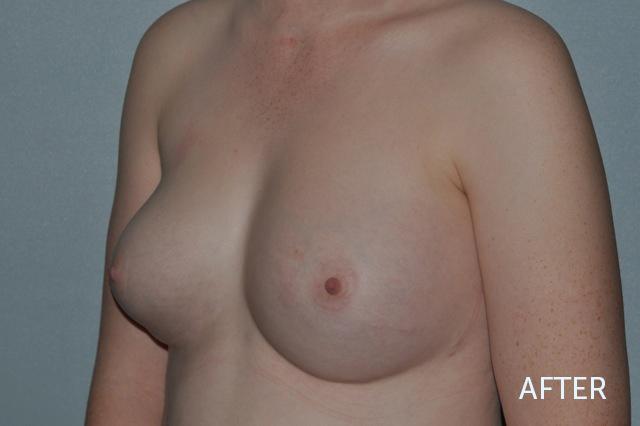 Breast Fat Grafting